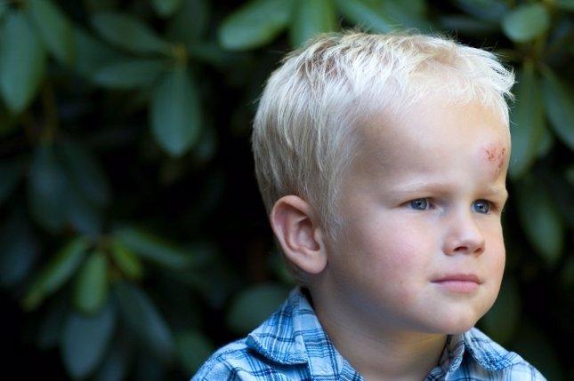 Chichones en los niños: ¿son peligrosos?