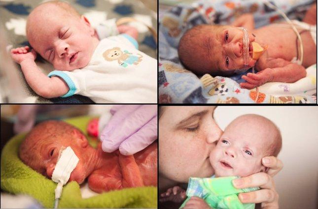 Vídeo evolución bebé prematuro